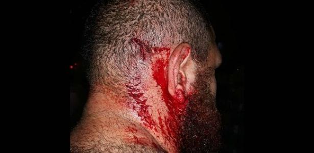 Khaliu Turt, aluno da Universidade Federal do Paraná, foi agredido por torcedores do Coritiba