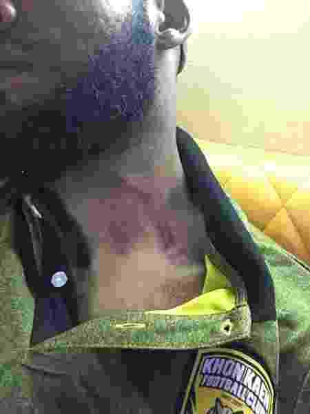 Thales Lima ficou com marca no pescoço após levar voadora - Arquivo pessoal - Arquivo pessoal