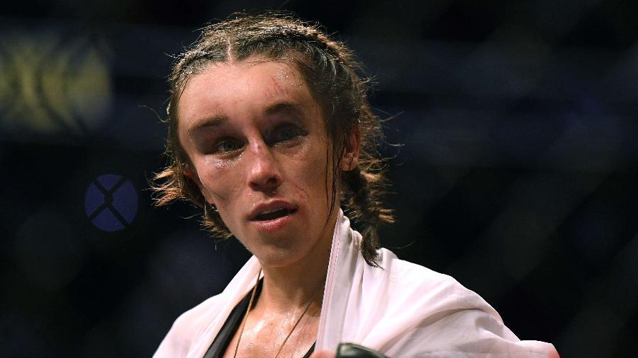 Joanna Jedrzejczyk fica com rosto inchado após a derrota no UFC 248 - Harry How/AFP