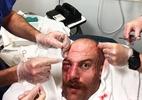 Desfigurado após luta, Patrick Cummins ironiza ferimentos em seu rosto
