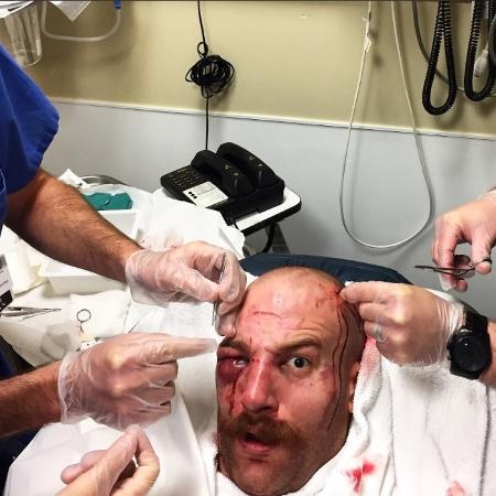 Patrick Cummins brinca com machucados no rosto após luta do UFC  - Reprodução/Twitter