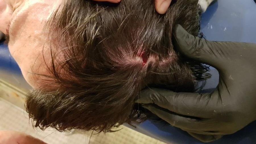 Vladimir Ivic, técnico do PAOK, sofreu corte na cabeça após lata atirada