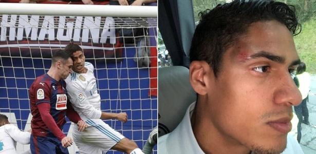 Zagueiro Varane deixou a partida entre Eibar x Real Madrid após choque de cabeça
