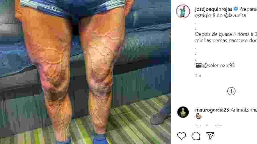 Ciclista espanhol mostra veias das pernas saltando após pedalar por 4h - Reprodução/Instagram