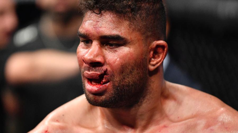 07.12.2019 - Overeem após confronto com Jairzinho no UFC Washington - Zuffa LLC via Getty Images