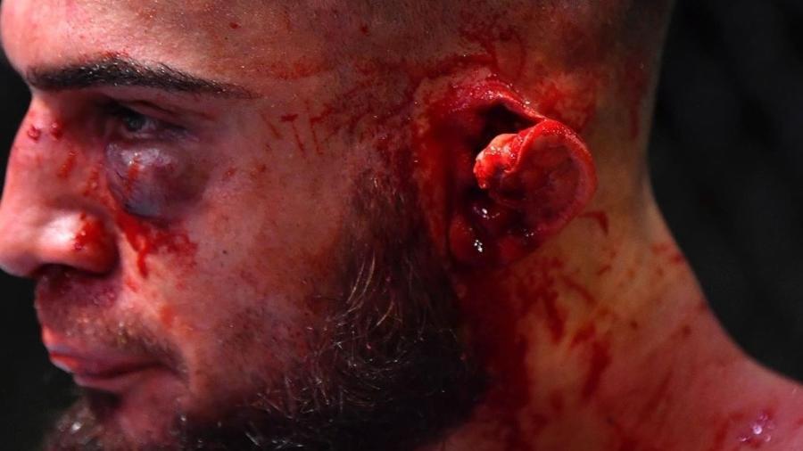 Ramiz Brahimaj, lutador do UFC, fica com a orelha muito ferida em luta contra Max Griffin - Reprodução