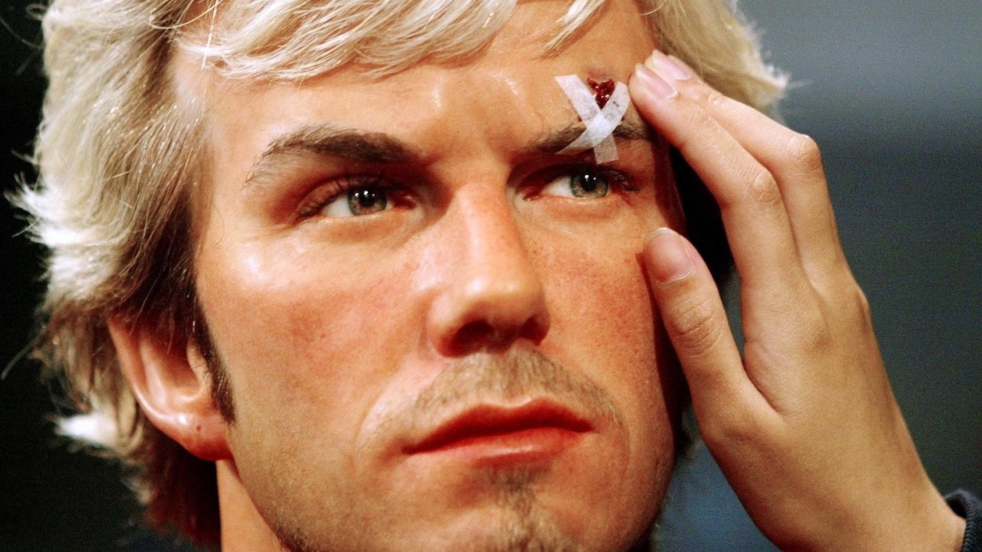 David Beckham com um corte no supercílio depois de ser atingido por uma chuteira atirada por Ferguson