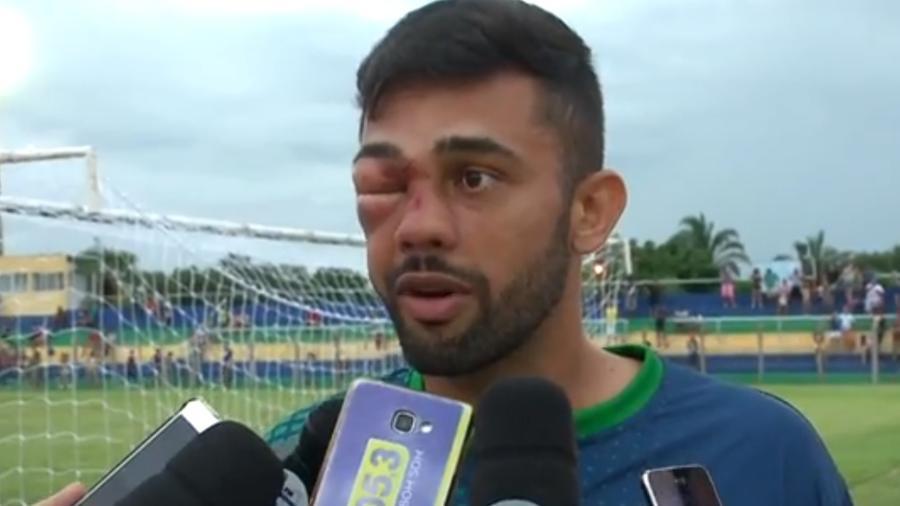 Jogador Humberto leva pancada no olho no Campeonato Piauiense - Reprodução