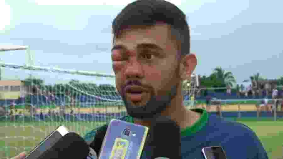 Jogador Humberto leva pancada no olho no Campeonato Piauiense Imagem   Reprodução c3b51a6a6a9be