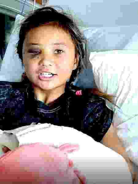 A skatista britânica Sky Brown se recupera no hospital após grave queda - Reprodução/Instagram