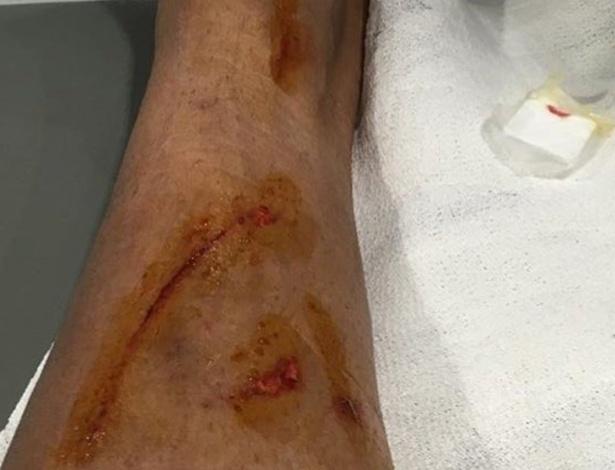 Danilo, do Real Madrid, publicou nas redes sociais imagem de como ficou sua perna depois de sofrer um pisão