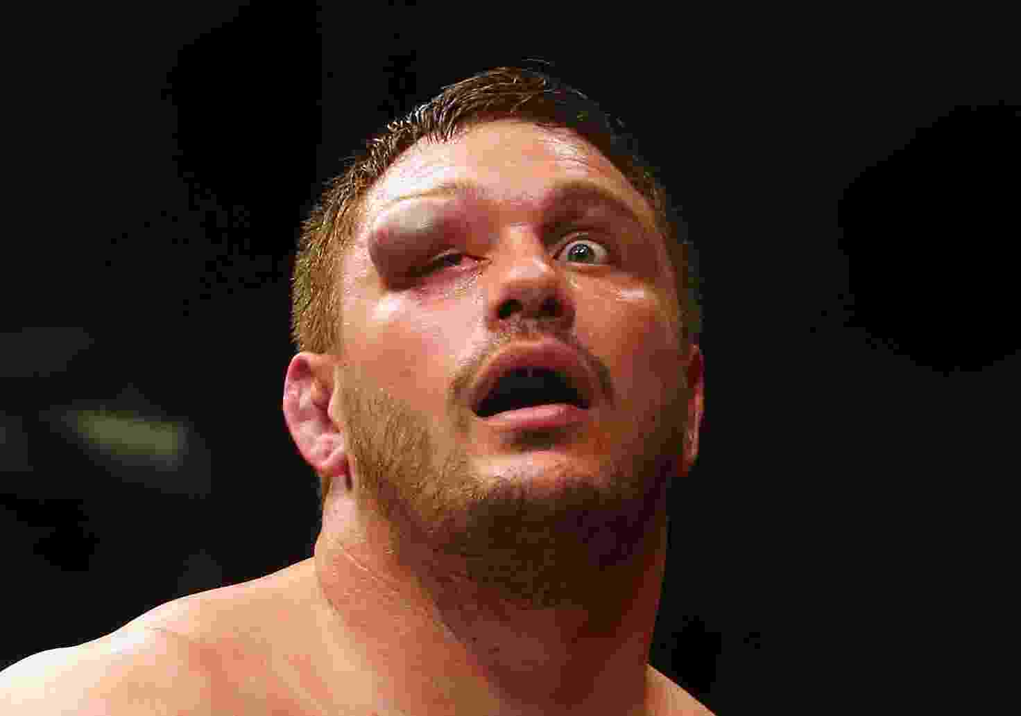 "Matt Mitrione ficou com o rosto ""diferente"" após perder para Travis Browne no UFC Fight Night - Maddie Meyer/Getty Images/AFP"