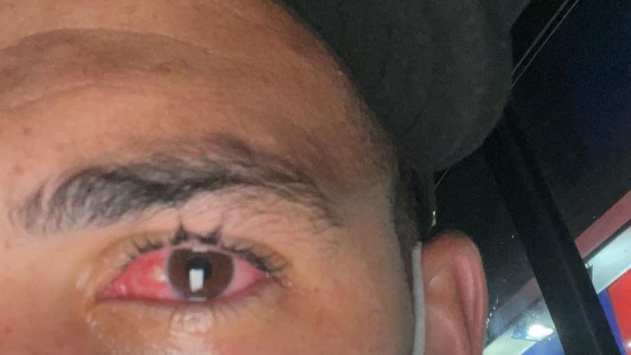 Luciano mostra irritação ocular que o fez desfalcar o SPFC no Brasileirão - Instagram