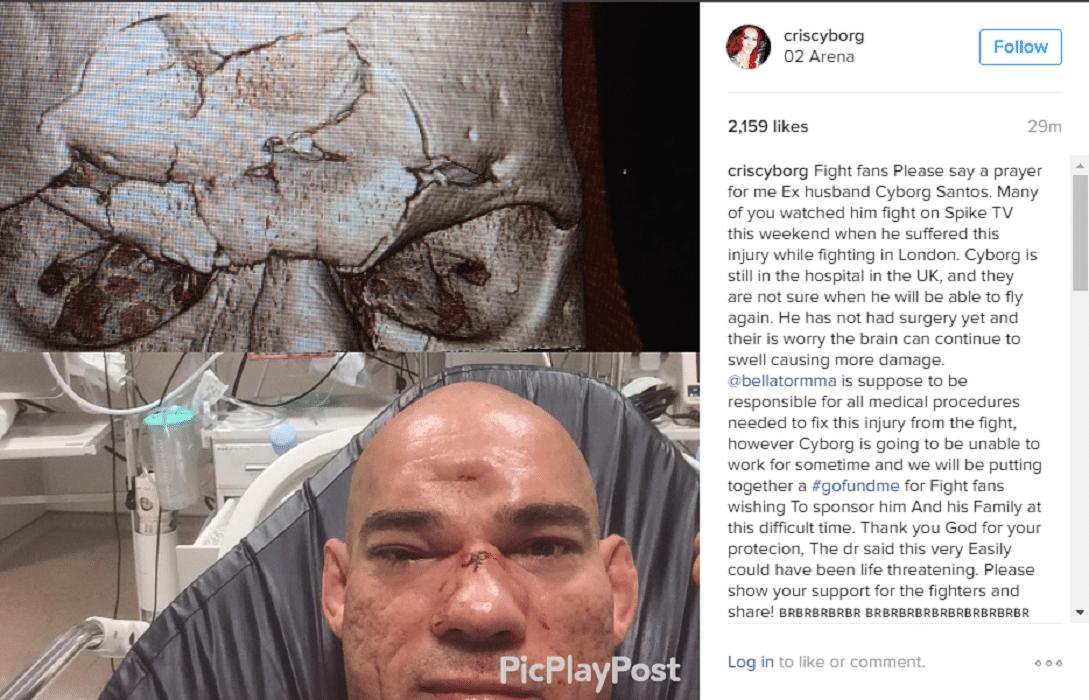 Chris Cyborg pede oração por marido que tem crânio afundado