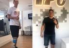 Follmann relembra quando colocou prótese após tragédia da Chapecoense - Reprodução/Instagram