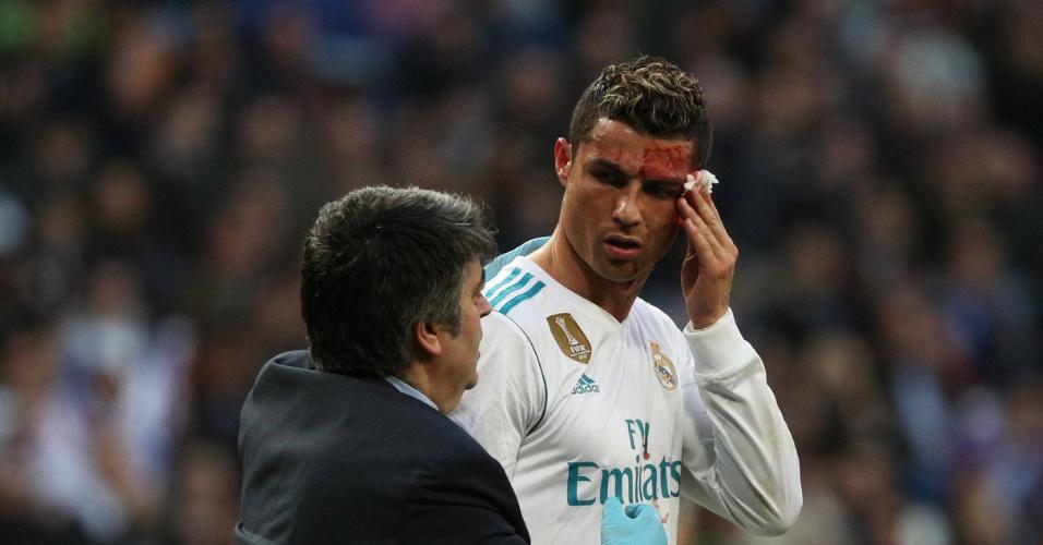 Cristiano Ronaldo é atendido após sofrer um corte no rosto
