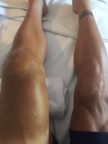 O ciclista Philippe Gilbert mostra o joelho esquerdo inchado após queda na Volta da França - Reprodução/Instagram