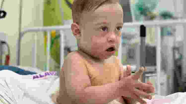 João Miguel, 1 ano e 7 meses, cardiopata com Down e leucemia vence covid - Marcel Vital/Hospital da Mulher - Marcel Vital/Hospital da Mulher