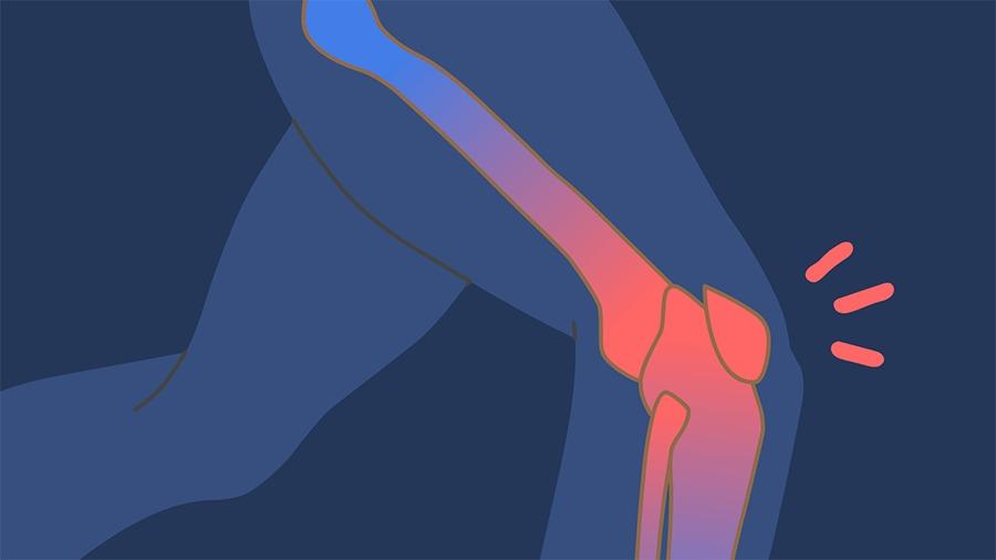 Pergunte ao VivaBem -  cartilagem joelho