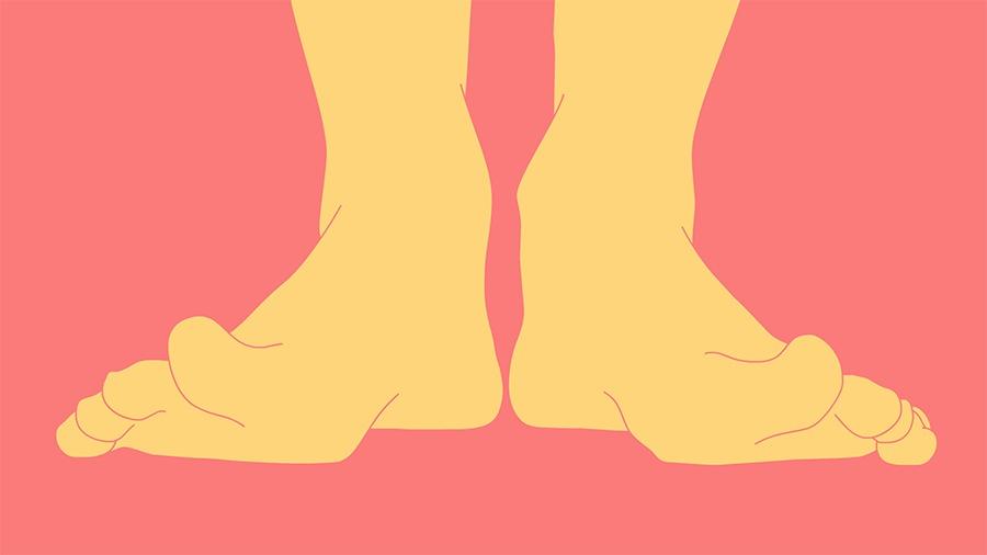 Pergunte ao VivaBem - Pés Descalços