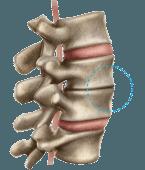 Coluna com artrose