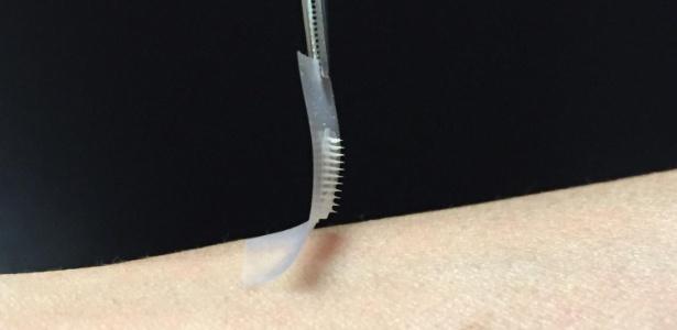 Adesivo De Espelho Parede ~ Adesivo'inteligente' de insulina obtém bons resultados em ratos diabéticos Notícias Saúde
