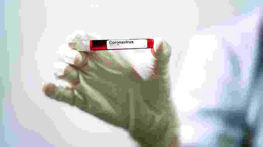 Teste analisará amostras de sangue em busca de anticorpos - Getty Images/EyeEm