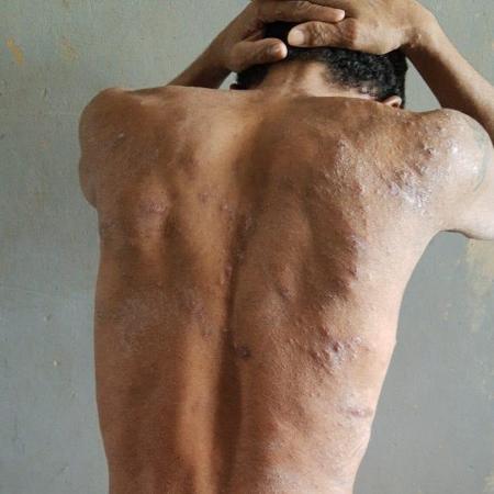 Detento de Roraima apresenta feridas causadas por doença desconhecida - OAB / RR