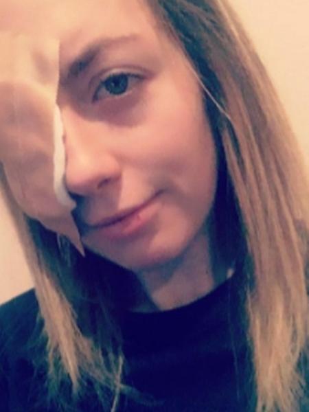 Charlotte Clarkson ficou cega de um olho por conta de um parasita de água de torneira; a jovem lavou suas lentes de contato com água contaminada pelo protozoário - Reprodução/Mirror