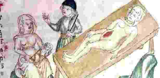 Na era medieval, os médicos já entendiam que o problema afetava tanto mulheres quanto homens - Welcome Images