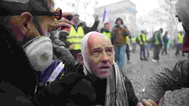 Manifestante ferido olha em direção ao Champs Elysees, em Paris - Lucas BARIOULET/AFP - Lucas BARIOULET/AFP