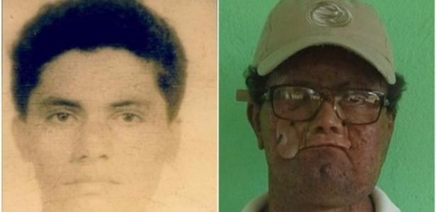 Deíde aos 18 anos e agora; por causa da doença xeroderma pigmentosum, ele perdeu parte do rosto - BBC