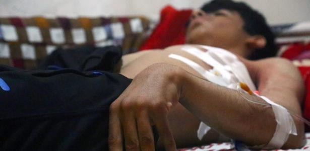2.mai.2017 - Jovem ferido recebe atendimento em hospital na cidade de Hassakeh, na Síria