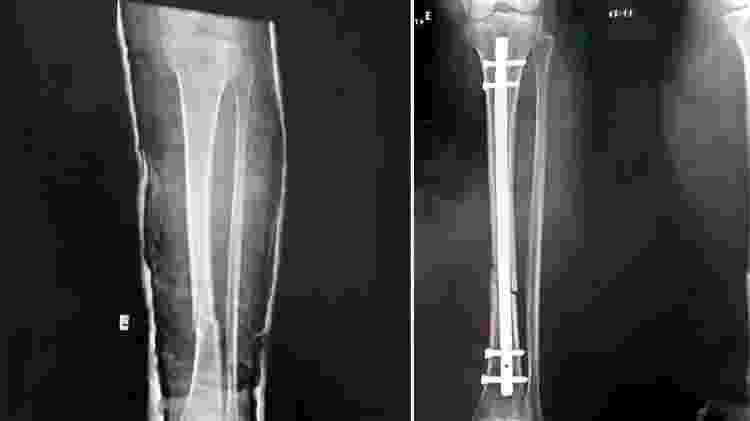 Tíbia de comerciante de 51 nos quebrou (esq.) após, segundo ela, um PM lhe aplicar uma rasteira em 30 de maio. Em 29 de junho, ela precisou fazer uma cirurgia para colocar uma haste e dois pinos no osso (dir.) - Arquivo Pessoal - Arquivo Pessoal