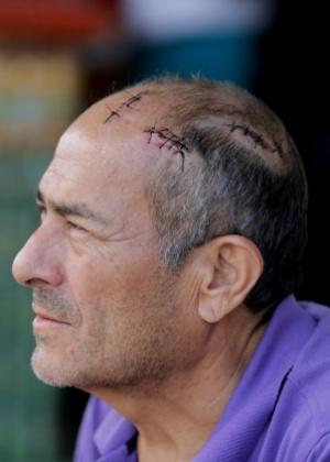 21.ago.2018 -  Comerciante Raimundo Nonato de Oliveira, de 55 anosm que foi agredido em Pacaraima (RR) - NILTON FUKUDA/Estadão Conteúdo