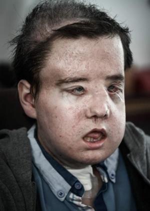 Jérôme Hamon se tornou a 1ª pessoa no mundo a enfrentar dois transplantes faciais