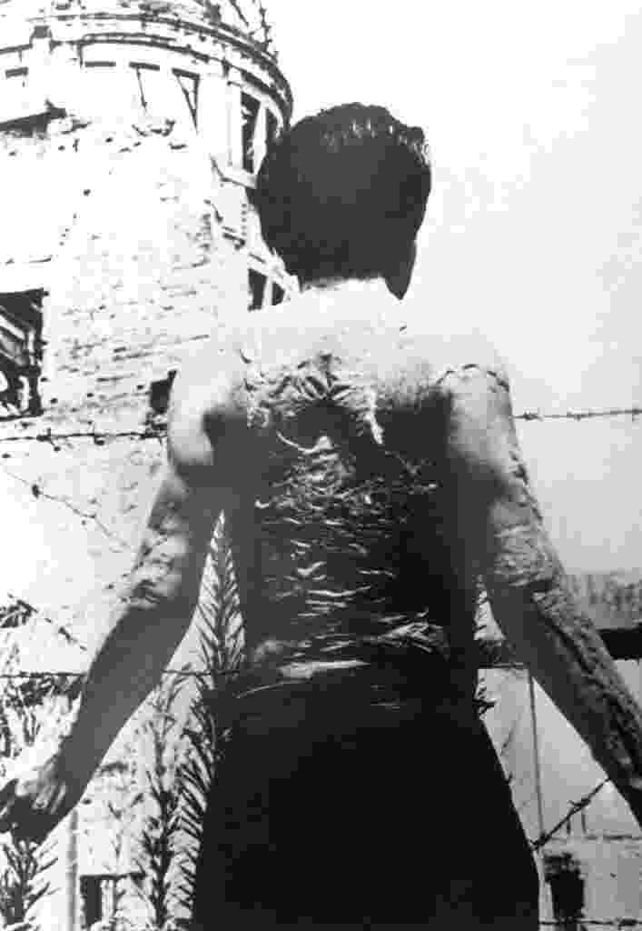 29.jul.2015 - Homem tem as costas totalmente queimada durante ataque com a bomba atômica lançada pelos EUA sobre Hiroshima, no Japão. Cerca de 140 mil pessoas, ou mais de metade da população da cidade na época, morreram após o primeiro bombardeio atômico, em 6 de agosto de 1945, e mais 70 mil pessoas morreram no segundo ataque, contra Nagasaki, três dias depois. Após os atentados, o Japão para forças aliadas, terminando oficialmente a Segunda Guerra Mundial - AFP