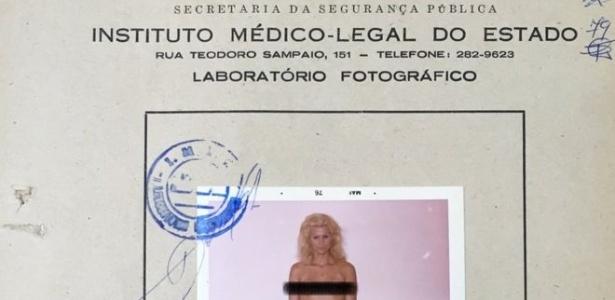 Fotografia de Waldirene em laudo do IML, feita em 1976; ela teve negado o pedido do habeas corpus preventivo para não ser submetida ao exame (a marca protegendo os seios foi feita pela BBC Brasil) - BBC Brasil