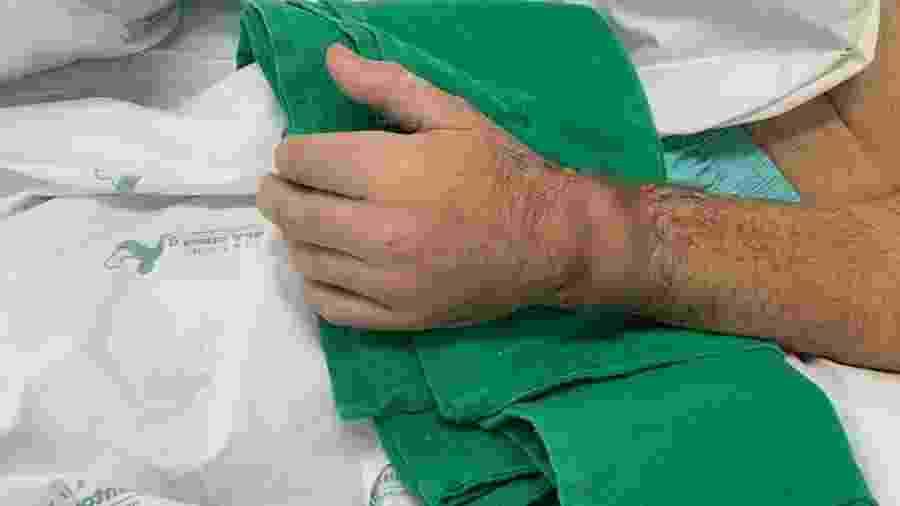 Homem teve mão reimplantada após conseguir preservá-la com gelo - Divulgação/Hospital Santo Antônio