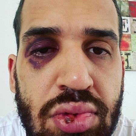 Médico João Eduardo Panini foi agredido por parente - Arquivo Pessoal/José Eduardo Panini