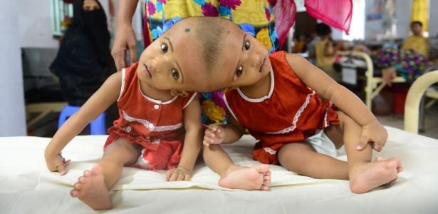 As gêmeas siamesas Rabia e Rukia nasceram unidas pelo crânio - Munir Uz Zaman/AFP