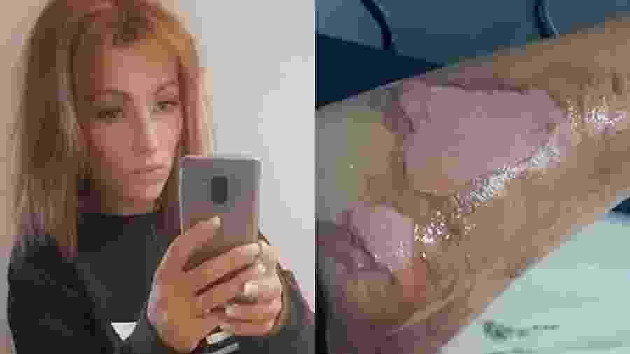 O caso aconteceu na última sexta-feira (16) e a mulher criticou a empresa pela falta de apoio de funcionários após o acidente - Reprodução/Facebook/Rosie Chapman