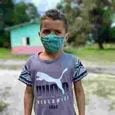 André, 7 anos, ficou com feridas abertas pelo corpo depois de receber um banho de agrotóxico - Diogo Cabral - Diogo Cabral