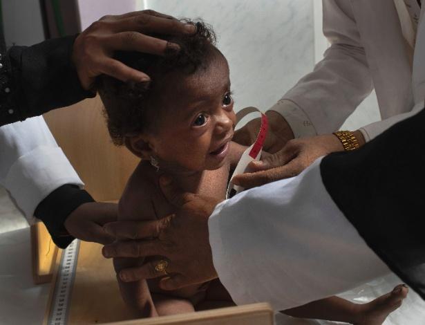 18.out.2018 - Criança desnutrida em uma clínica móvel em Aslam, no Iêmen - Tyler Hicks/The New York Times