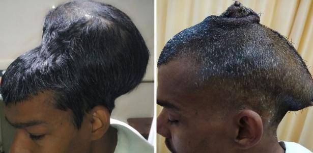 Santlal Pal antes e depois da cirurgia  - Department of Neurosurgery Topiwala National Medical College