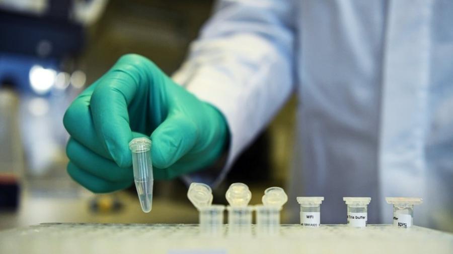 Especialistas esperam que a descoberta ajude no desenvolvimento de vacina para covid-19 - EPA