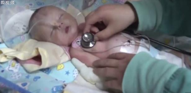 A criança está em condições melhores, mas ainda não está fora de perigo