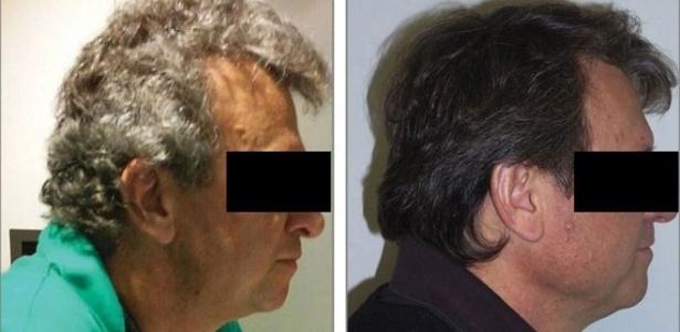 Dos 52 pacientes com câncer de pulmão, 14 tiveram mudanças na pigmentação do cabelo - Jama Network/American Medical Association