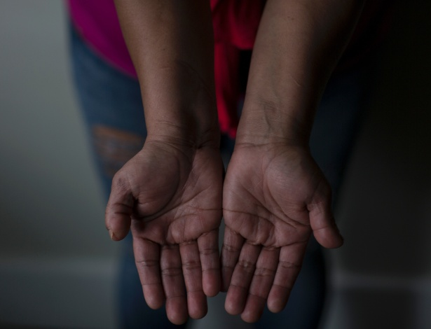 Hondurenha M.G. mostra as cicatrizes nos punhos após agressões