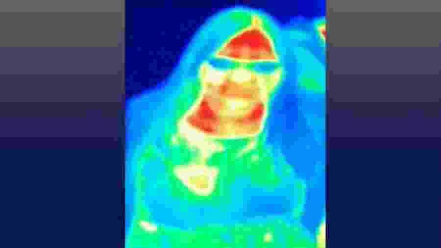 A câmera de imagem térmica mostrou que o seio de Gill tinha uma cor diferente - Bal Gill